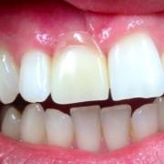 Zahnimplantate und Zahnersatz aus einer Hand in unserer Praxis in Leipzig 6
