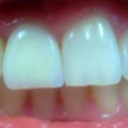 Zahnimplantate und Zahnersatz aus einer Hand in unserer Praxis in Leipzig 5