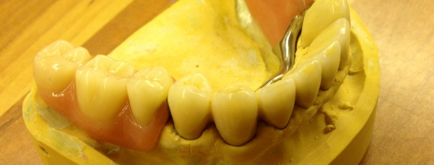 Zahnimplantate und Zahnersatz aus einer Hand in unserer Praxis in Leipzig 3