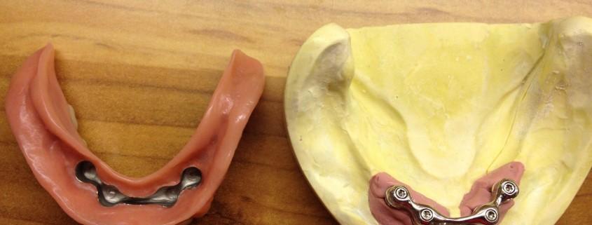 Zahnimplantate und Zahnersatz aus einer Hand in unserer Praxis in Leipzig 9