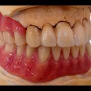 Zahnimplantate und Zahnersatz aus einer Hand in unserer Praxis in Leipzig 4