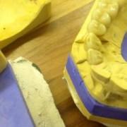 """Zahnimplantate und der dazu gehörige Zahnersatz aus unserem Labor, """" Alles aus einer Hand """""""