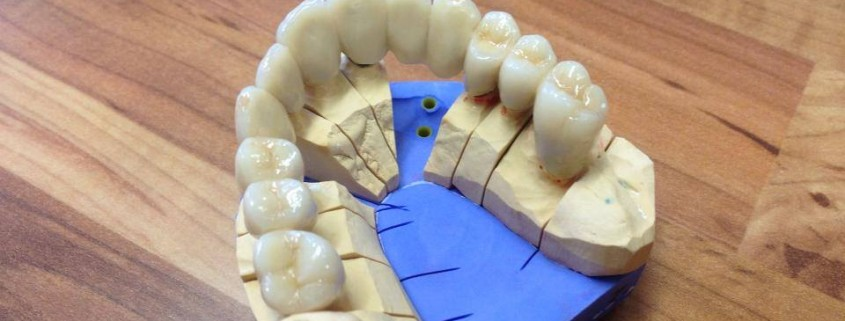 Zahnimplantate und Zahnersatz aus einer Hand in unserer Praxis in Leipzig 2