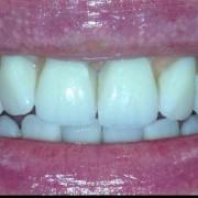 Zahnimplantate machen glücklich 1