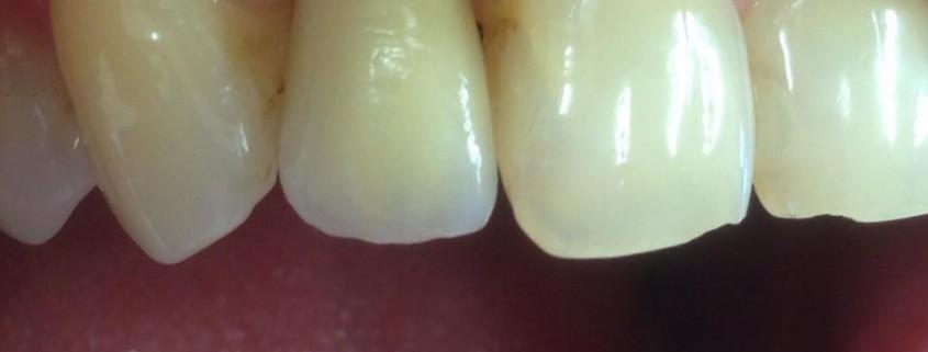 Zahnimplantate machen glücklich 2