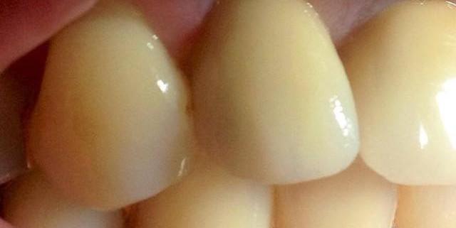 Zahnimplantate machen glücklich 4