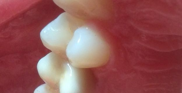 Zahnimplantate machen glücklich