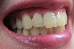 Tipps zur richtigen Zahnpflege 3