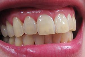 Tipps zur richtigen Zahnpflege 4